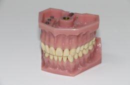 dentures-1514697